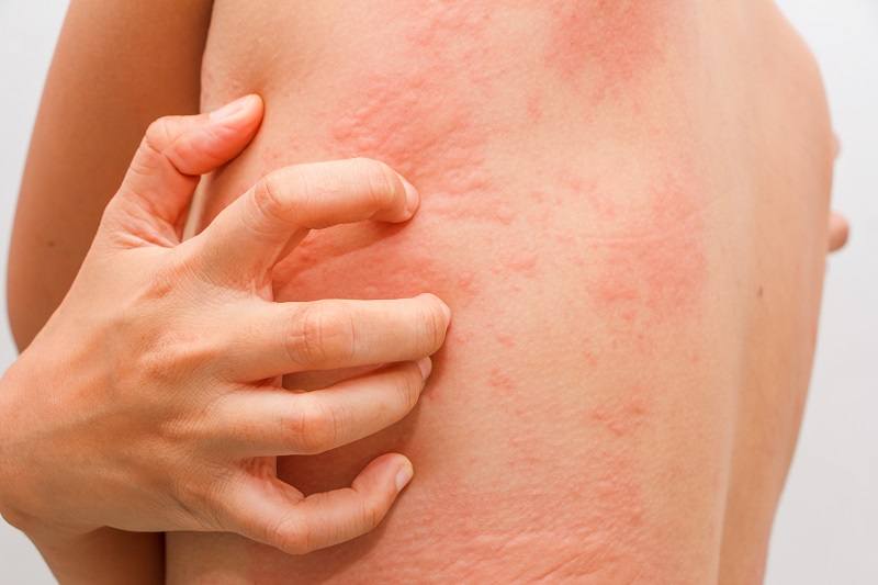Treating Urticaria, Skin Lesions & Atopic Dermatitis Using Topical CBD Gels