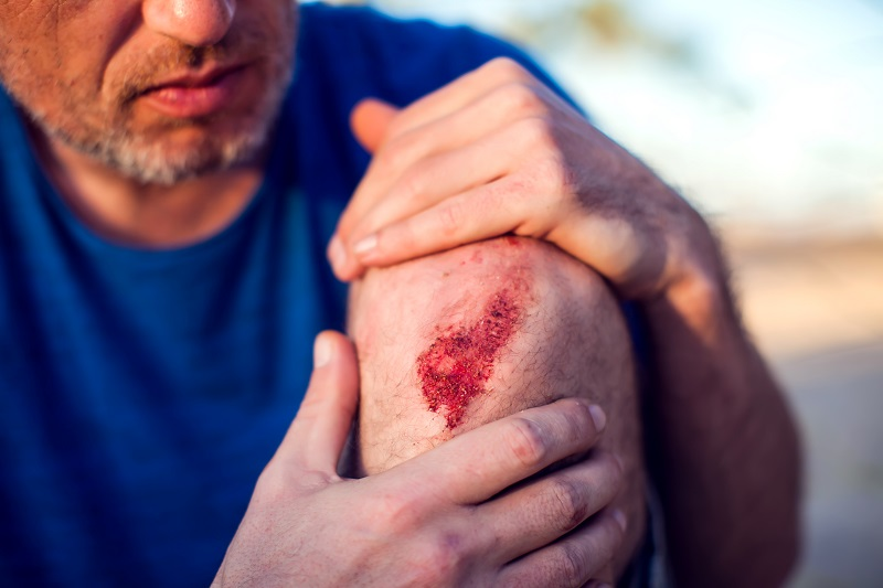 Will CBD Topicals Be A Good Choice For Treating Abrasion Wounds?