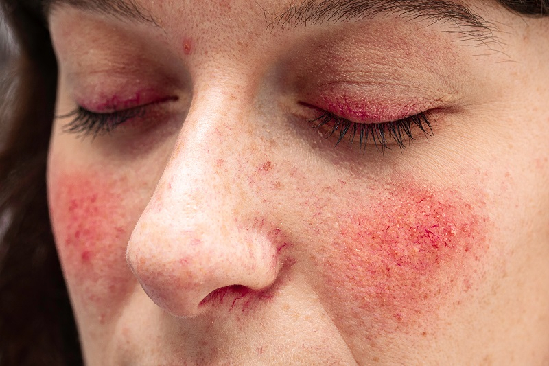 The Role of CBD In Treating Rosacea